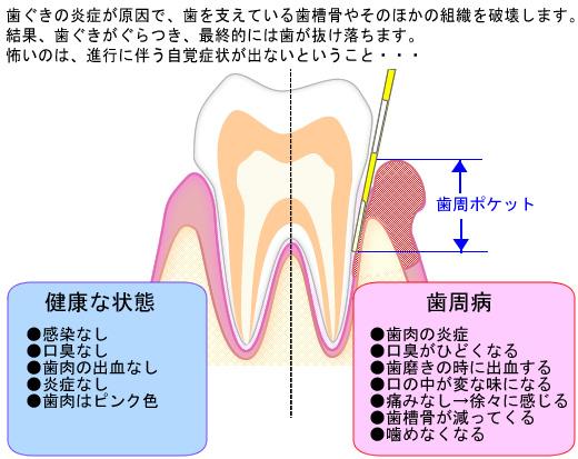 歯ぐきの炎症が原因で、歯を支えている歯槽骨やそのほかの組織を破壊します。結果、歯ぐきがぐらつき、最終的には歯が抜け落ちます。怖いのは、進行に伴う自覚症状が出ないということ… 歯周病のイメージ イラスト左:健康な状態 ・感染なし・口臭なし・歯肉の出血なし・炎症なし・歯肉はピンク色 イラスト右:歯周病 ・歯肉の炎症・口臭がひどくなる・歯磨きの時に出血する・口の中が変な味になる・痛みなし→徐々に感じる・歯槽骨が減ってくる・噛めなくなる